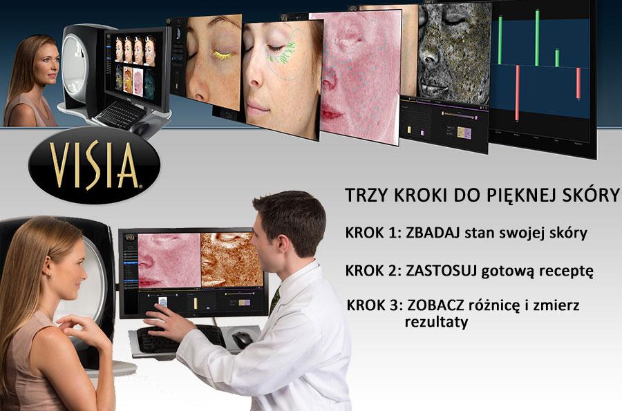 Komputerowa analiza skóry Tomaszów Mazowiecki